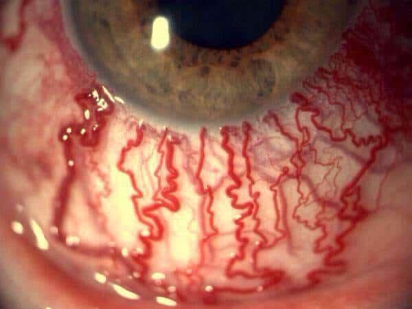 Rage Virus Red Eyes